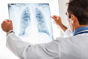 Профилактика и раннее выявление туберкулеза 16